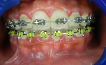 Orthodontic Treatment: Braces