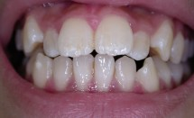 Orthodontic Treatment: Patient 1 Before