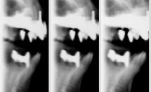 Implant X-Ray