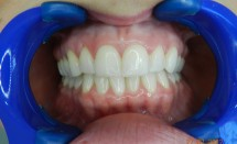 Invisalign Patient Outcome