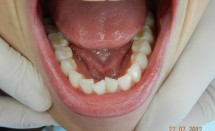 Invisalign Patient Lower Dentition