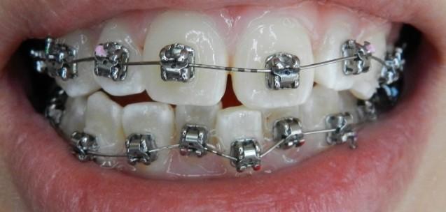 Orthodontic Treatment: Braces
