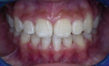 Orthodontic patient #1: After