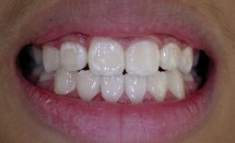 Orthodontic patient #2: After