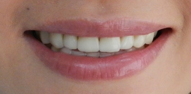 Cerinate: Smile