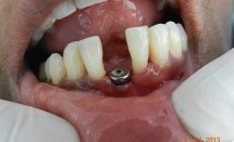 Implant : lower incisor #1.1