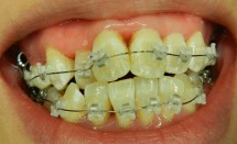 Orthodontic Treatment: Braces with Porcelain Brackets