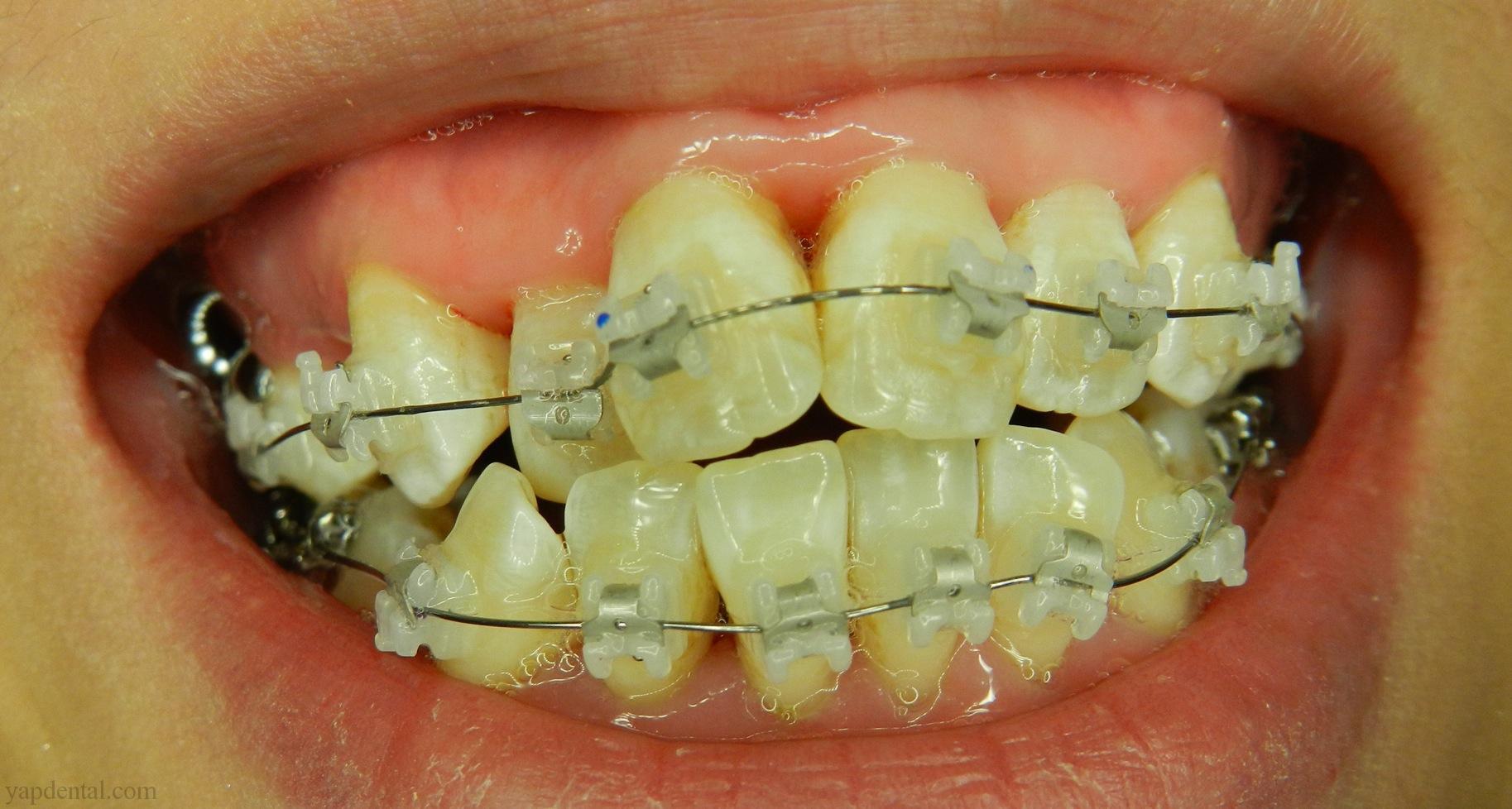 Orthodontic Treatment Toothdocinc Kuala Lumpur Malaysia