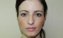 Invisalign Patient: Dani Maia