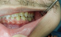 Implant molar #2.6