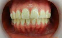 Invisalign patient #2, after