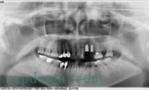 OPG implant