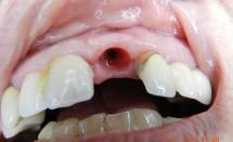 Implant incisor #3.1