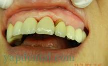 Implant Incisor #3.3