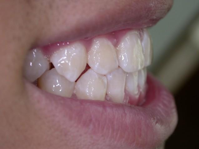 Ortho Smile #2