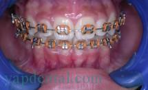 Fixed Ortho braces
