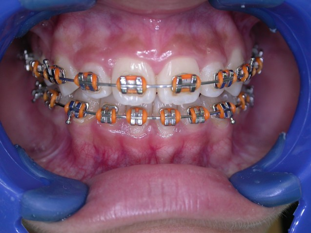 Fixed Ortho braces