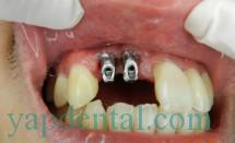 IMplant incisors #4.1