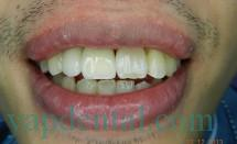 Implant incisors #4.2