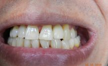 Implant lateral incisor