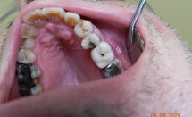 Implant upper molar